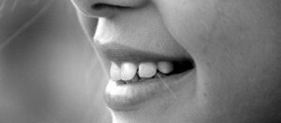הלבנת-שיניים-–-כל-מה-שחשוב-לדעת.jpg
